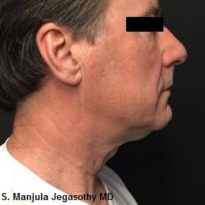 Non-surgical Necklift with Kybella® after 2255639