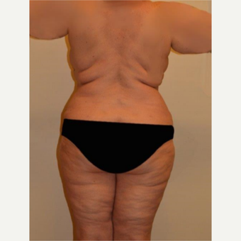 45-54 year old woman treated with Liposuction after 3658219