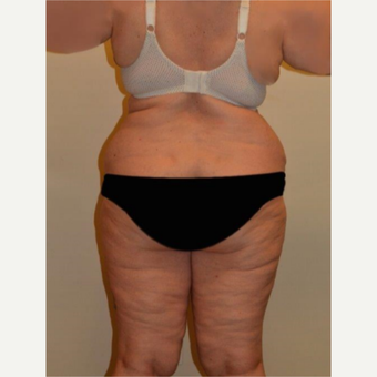 45-54 year old woman treated with Liposuction before 3658219