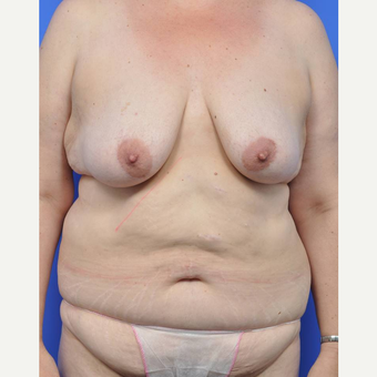 35-44 year old woman treated with Body Lift before 3442382