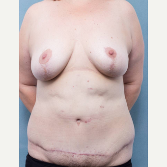 35-44 year old woman treated with Body Lift after 3442382