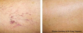 Vbeam vein removal before 369210