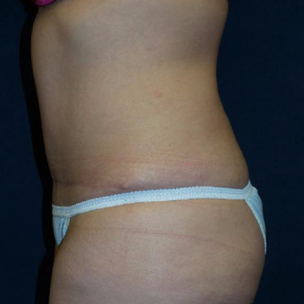 45-54 year old woman treated with Tummy Tuck after 3453629