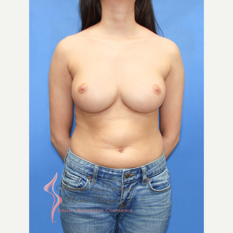 25-34 year old woman treated with Breast Implant Revision after 3137983