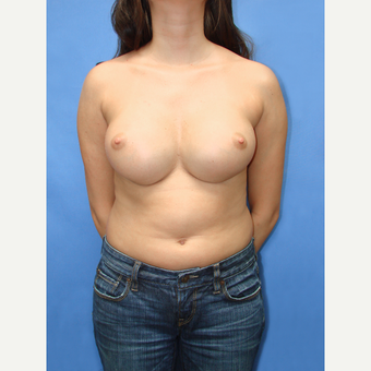 25-34 year old woman treated with Breast Implant Revision before 3137983