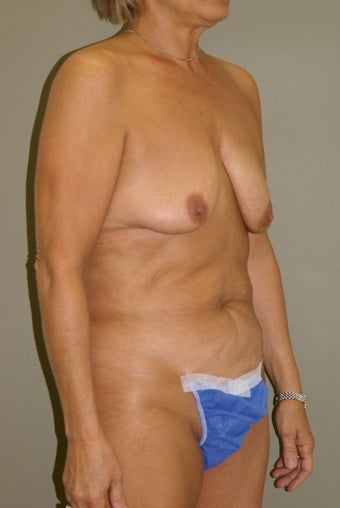 57 Year Old Female Underwent Bilateral Mastopexy (breast lift) along with Abdominoplasty 1108606