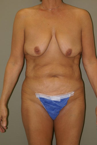 57 Year Old Female Underwent Bilateral Mastopexy (breast lift) along with Abdominoplasty before 1108606