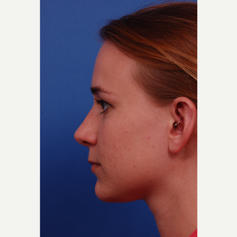 18-24 year old woman treated with Rhinoplasty with ear graft after 3175247