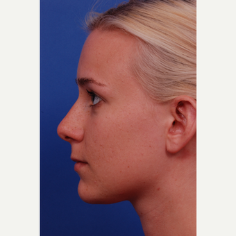 18-24 year old woman treated with Rhinoplasty with ear graft before 3175247