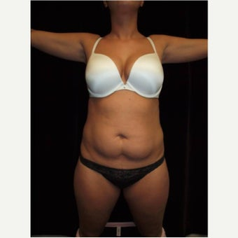35-44 year old woman treated with Laser Liposuction before 2568539