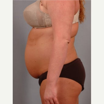 35-44 year old woman treated with Vaser Liposuction before 2479155