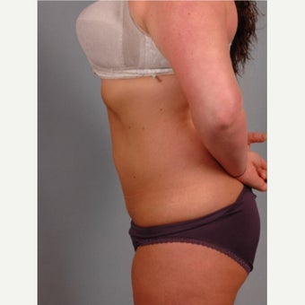 35-44 year old woman treated with Vaser Liposuction after 2479155