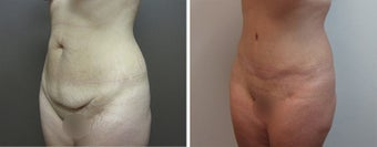 25-34 year old woman treated with Tummy Tuck before 3226450