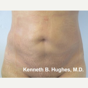 Liposuction after 3094217