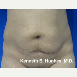 Liposuction before 3094217