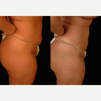 25-34 year old woman treated with Liposuction before 3659450