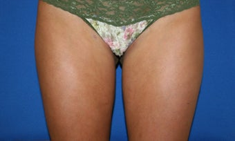 Smartlipo treatment to inner and outer thighs after 1361277