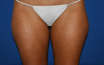Smartlipo treatment to inner and outer thighs before 1361277