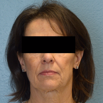 65-74 year old woman treated with Laser Skin Resurfacing before 3253466