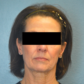 65-74 year old woman treated with Laser Skin Resurfacing after 3253466