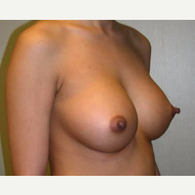 Breast Augmentation after 3680755