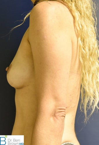25-34 year old woman treated with Breast Augmentation 3486831