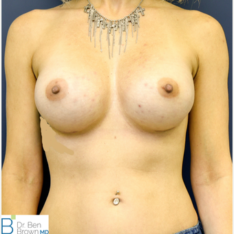 25-34 year old woman treated with Breast Augmentation after 3486831