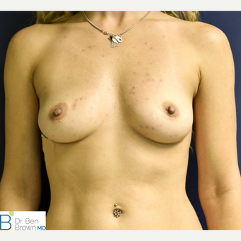25-34 year old woman treated with Breast Augmentation before 3486831