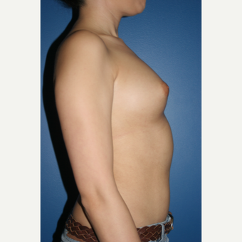 25-34 year old woman treated with Breast Augmentation before 3788594