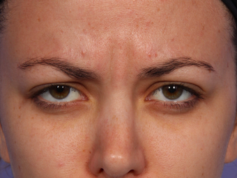 Botox Between Eyebrows before 302214