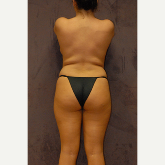 25-34 year old woman treated with Butt Augmentation before 2742758