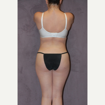 25-34 year old woman treated with Butt Augmentation after 2742758