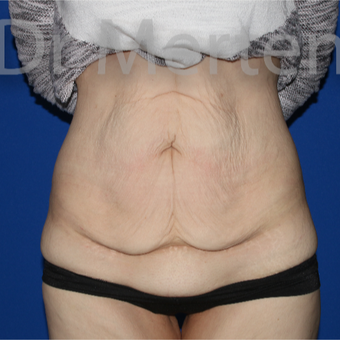 25-34 year old woman treated with Tummy Tuck before 3675941