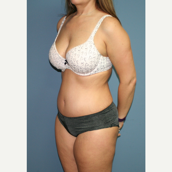 35-44 year old woman treated with Tummy Tuck after 3559136