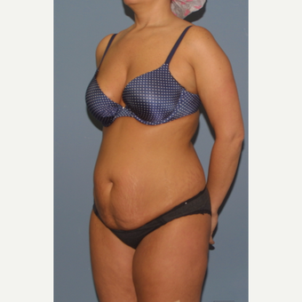 35-44 year old woman treated with Tummy Tuck before 3559136