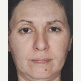 55-64 year old woman treated with Melasma Treatment after 2579558