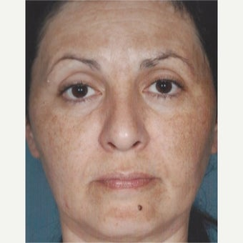 55-64 year old woman treated with Melasma Treatment before 2579558