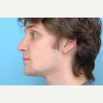 18-24 year old man treated with Rhinoplasty after 3488185