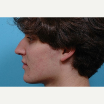 18-24 year old man treated with Rhinoplasty before 3488185