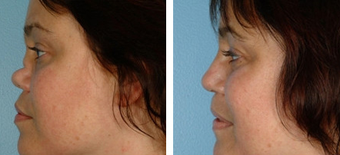 Functional Rhinoplasty before 1208301