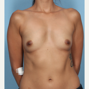 25-34 year old woman treated with Breast Augmentation before 3566084