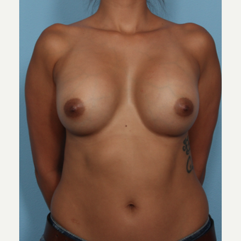 25-34 year old woman treated with Breast Augmentation after 3566084