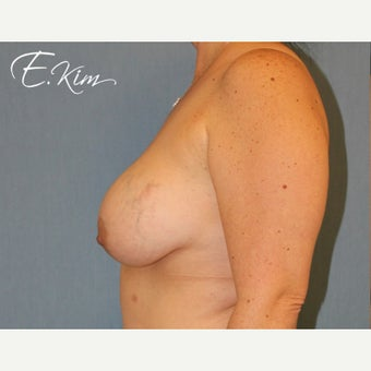 45-54 year old woman treated with Breast Implant Removal before 2256240