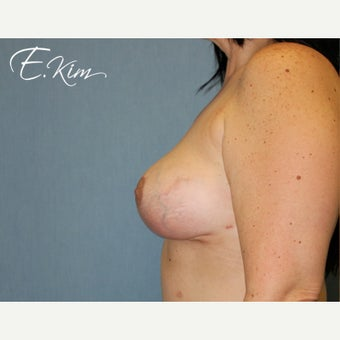 45-54 year old woman treated with Breast Implant Removal after 2256240