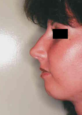 Revision Rhinoplasty before 665078