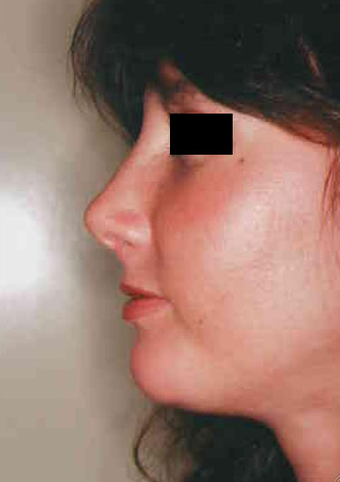 Revision Rhinoplasty after 665078