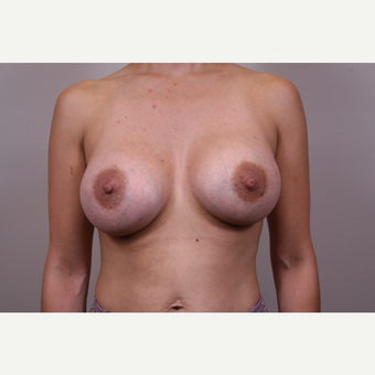 25-34 year old woman treated with Breast Augmentation after 3768640