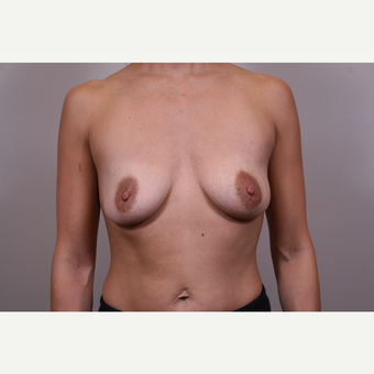 25-34 year old woman treated with Breast Augmentation before 3768640