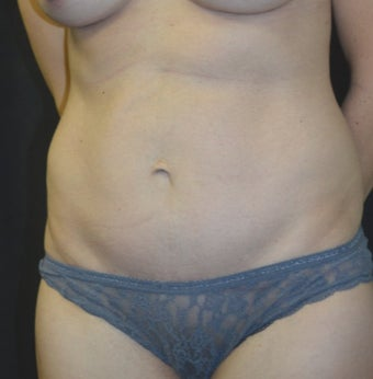 35-44 year old woman treated with Tummy Tuck after 3181813