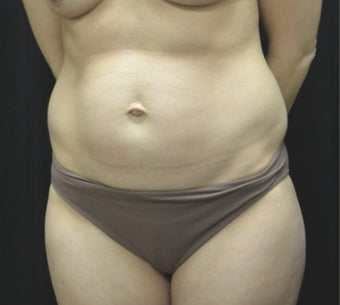35-44 year old woman treated with Tummy Tuck before 3181813